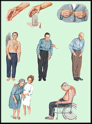 பார்கின்ஸன்ஸ் வியாதி (Parkinson's Disease) – கம்ப வாதம் - நடுக்கு வாதம் Parkinson-disease2
