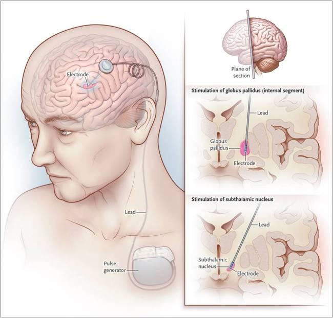 பார்கின்ஸன்ஸ் வியாதி (Parkinson's Disease) – கம்ப வாதம் - நடுக்கு வாதம் Parkinsons-disease